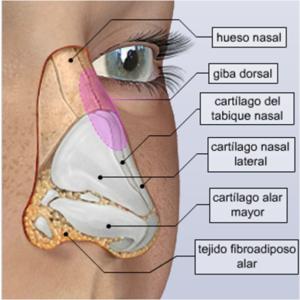 rinoplastia-1